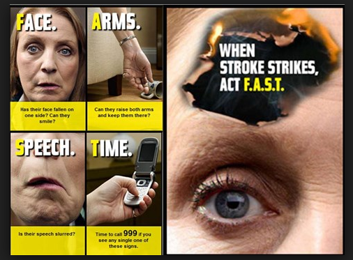 Graphic from the Act F.A.S.T campaign